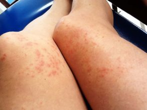 what to do jellyfish stings